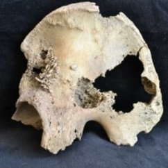 Temple Finds Metastatic Cancer in 4,500-year-old Remains
